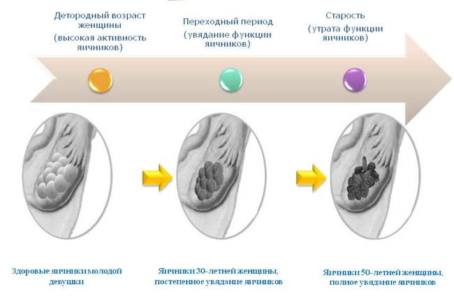 Климактерический синдром – симптомы и лечение, фото и видео