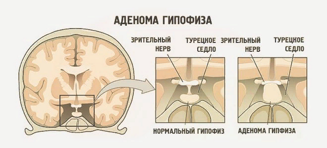 Опухоль гипофиза – симптомы и лечение, фото и видео