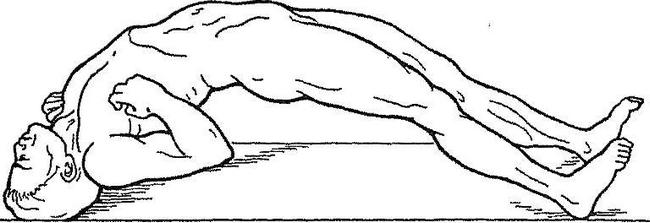 Опистотонус — симптомы и лечение, фото и видео