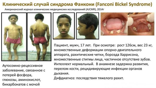 Синдром Фанкони — симптомы и лечение, фото и видео
