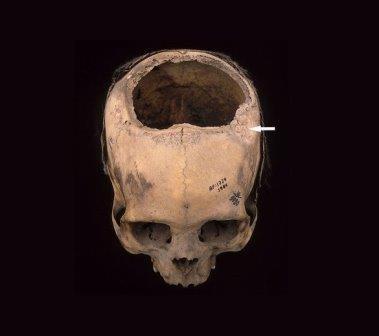 Древние инки превосходили хирургов середины XIX века в искусстве операции на черепе