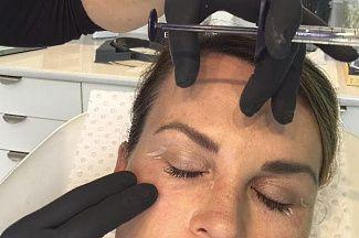 Новый метод лечения морщин и облысения