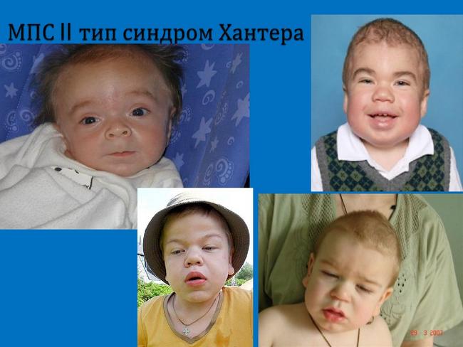 Синдром Хантера — симптомы и лечение, фото и видео