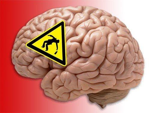 Ученые подсчитали, как долго мозг восстанавливается после пьянки