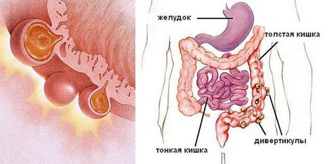 Дивертикулез кишечника — симптомы и лечение, фото и видео