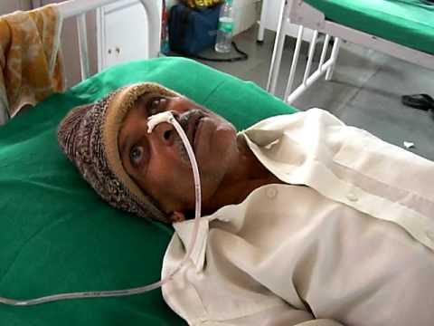 Болезнь куру - симптомы и лечение, фото и видео.