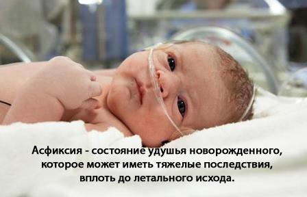 Асфиксия новорожденных — симптомы и лечение, фото и видео