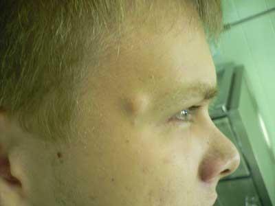 Эпидермальная киста — симптомы и лечение, фото и видео