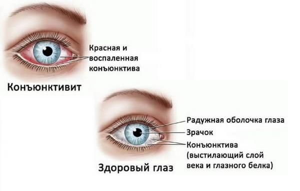 Снежная слепота — симптомы и лечение, фото и видео