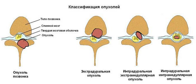 Опухоль спинного мозга — симптомы и лечение, фото и видео
