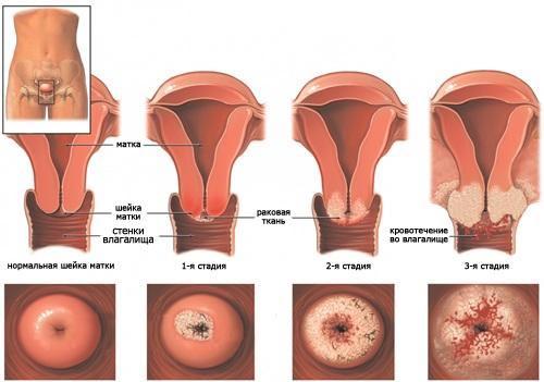 Плоскоклеточная карцинома — симптомы и лечение, фото и видео