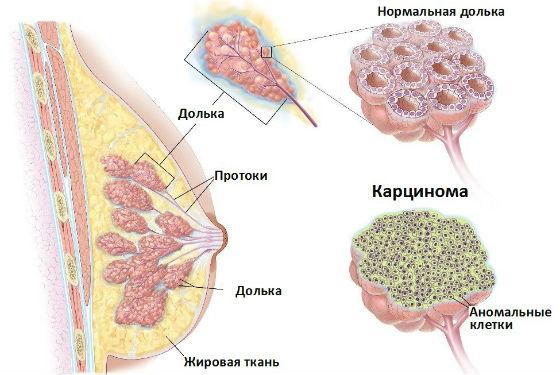 Карцинома молочной железы — симптомы и лечение, фото и видео