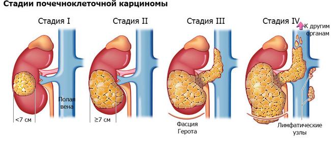 Карцинома — симптомы и лечение, фото и видео