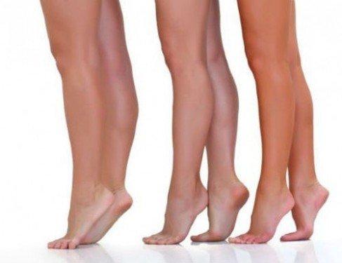 У вас высокий рост? Присмотритесь, не появились ли варикозные вены на ногах