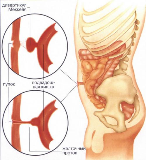 Дивертикул Меккеля — симптомы и лечение, фото и видео