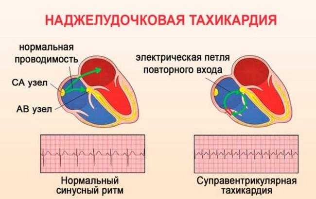 Наджелудочковая тахикардия — симптомы и лечение, фото и видео