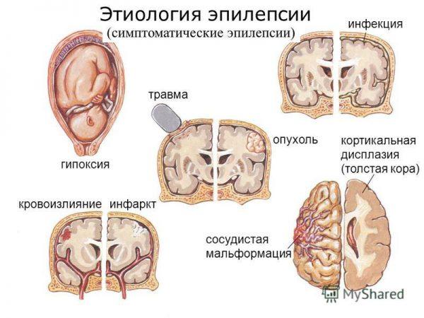 Симптоматическая эпилепсия - симптомы и лечение, фото и видео.