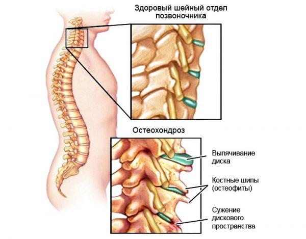Симптомы шейного остеохондроза.