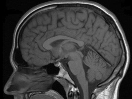 Ученые напали на след виновника рассеянного склероза