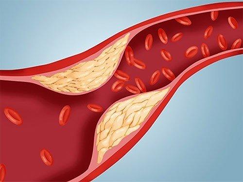 Ученые утверждают, что «плохой холестерин» — просто раздутый миф