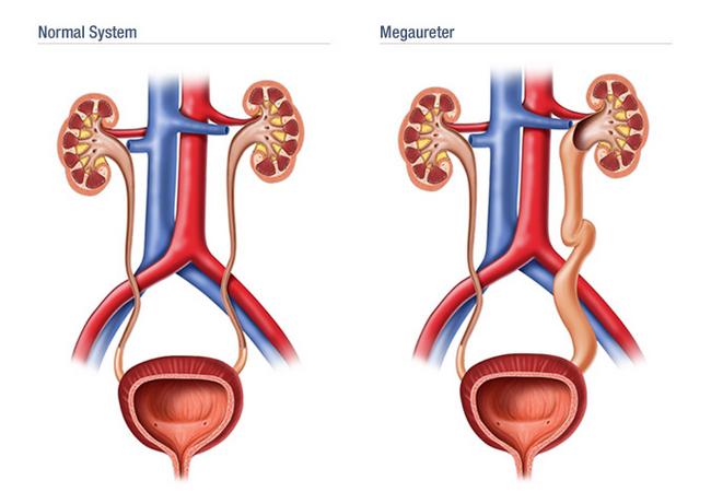 Мегауретер — симптомы и лечение, фото и видео