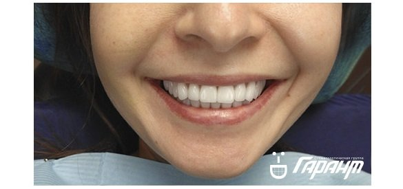 Современные зубные импланты.
