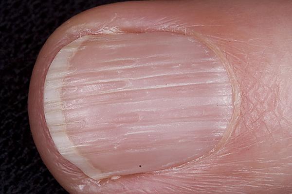 Онихорексис — симптомы и лечение, фото и видео