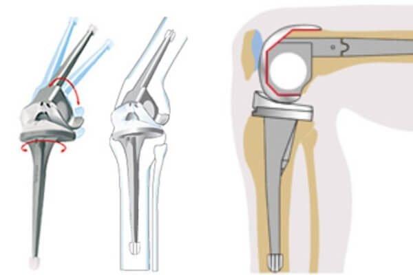 Эндопротезирование коленного сустава.