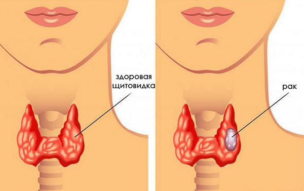 Папиллярная карцинома — симптомы и лечение, фото и видео