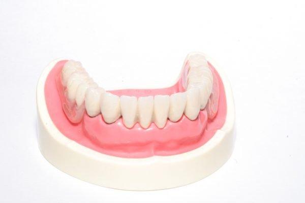 Съемные зубные протезы и правила ухода за полостью рта.