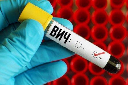 Среди россиян есть носители гена, который защищает от ВИЧ