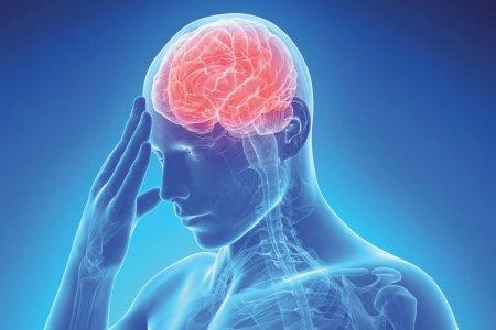 Инсульт ведет к депрессии и деменции