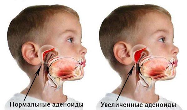 Аденоидит у ребенка - симптомы и лечение.