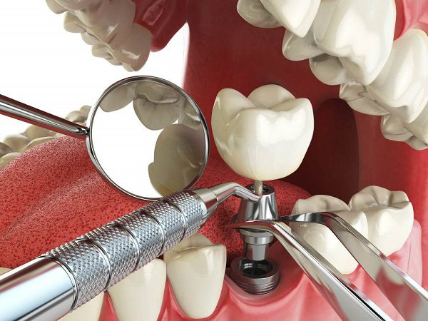 Имплантация зубов как современное лечение и протезирование.