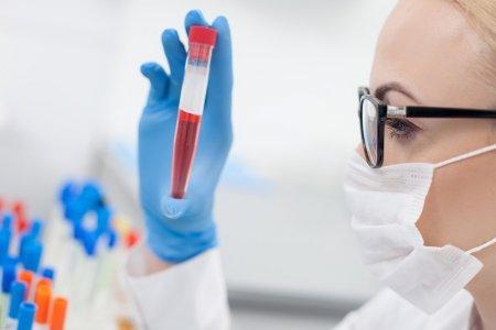 Анемия: почему падает гемоглобин и что делать
