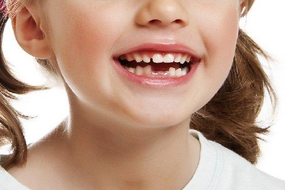 Удаление молочных зубов у детей: когда нужно их удалять, а когда нет.