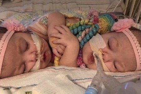 В США раздели сиамских близнецов, сросшихся животами