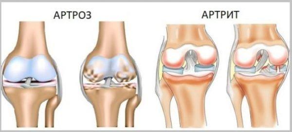 Как определить артрит или артроз суставов?
