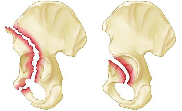 Перелом лонной кости таза - симптомы и лечение.