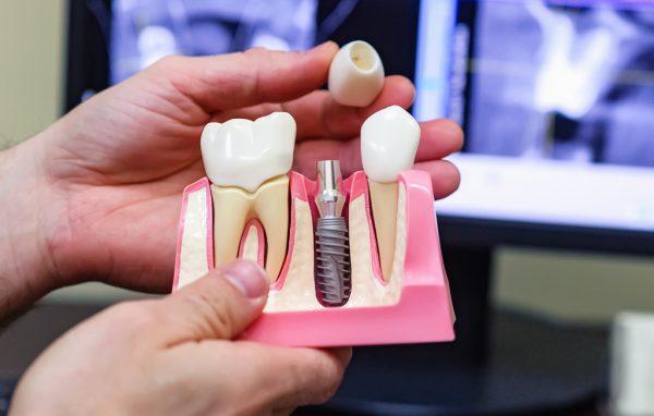 Одномоментная имплантация зубов.
