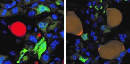 Образование метастазов предотвратили, сделав раковые клетки жировыми