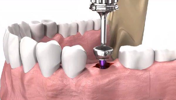 Формирователь десны при имплантации зубов.