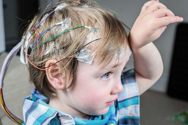 Эпилепсия — мифы о заболевании, методы лечения.