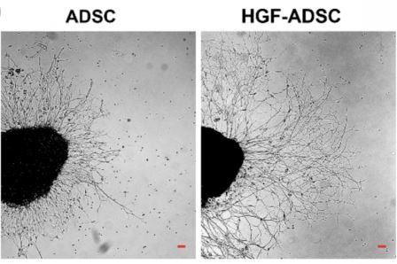 Учёные создали клеточные пластыри из ГМО-клеток для восстановления тканей после ишемии