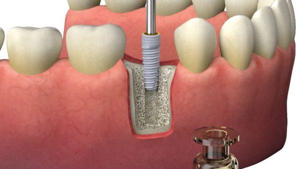 Имплантация зубов под ключ – лучшее решение.