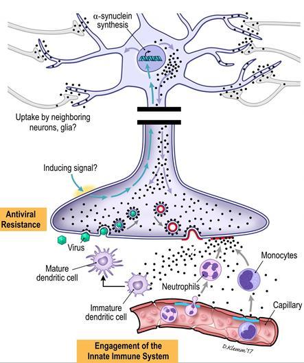 Обнаружена связь белка альфа-синуклеина с болезнью Паркинсона