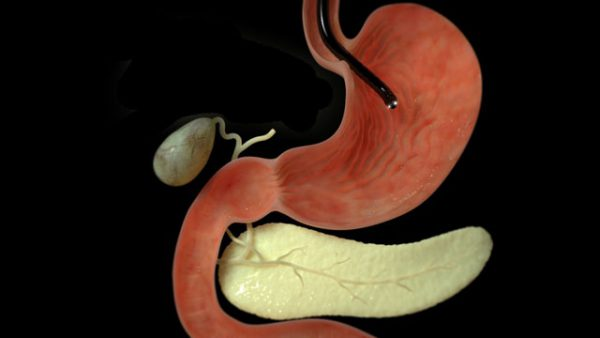 Эндоскопия желудочно-кишечного тракта.