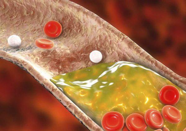 Как снизить холестерин народными средствами в домашних условиях.