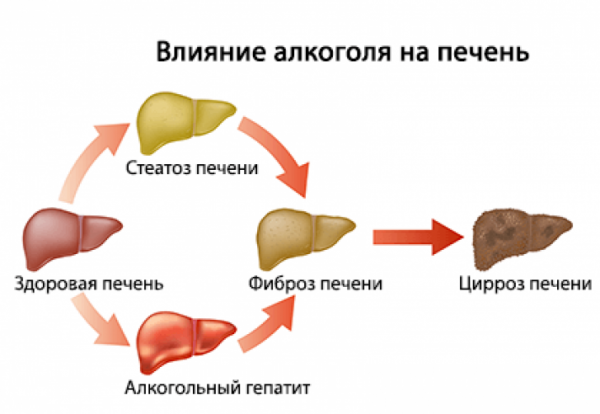 Алкогольный гепатит.