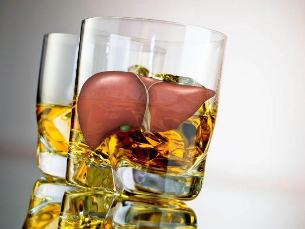 При постоянном употреблении большого количества этанола вначале формируется жировая дистрофия, затем алкогольный гепатит, который легко может перейти в цирроз печени, если не проводятся лечебные процедуры.